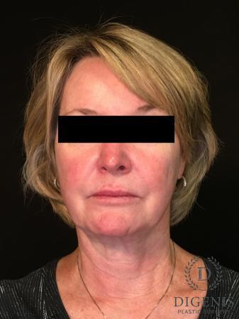 Digenis Refresh Lift: Patient 1 - Before Image 1