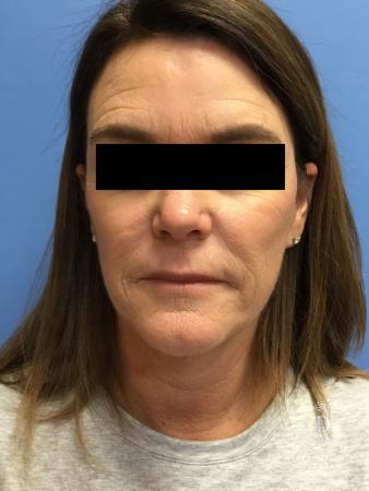 Facelift: Patient 11 - After Image 1