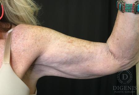 Brachioplasty: Patient 1 - Before Image 1