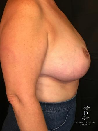 Breast Lift With Implants: Patient 4 - After Image 3