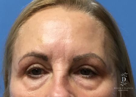 Eyelid Surgery: Patient 5 - After Image