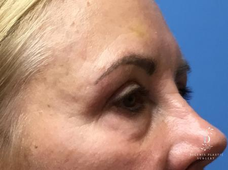 Eyelid Surgery: Patient 5 - After Image 2