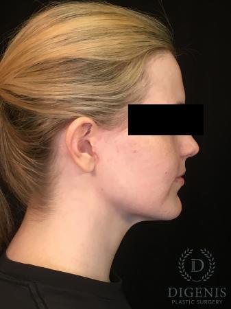Digenis Refresh Lift: Patient 2 - After Image 5