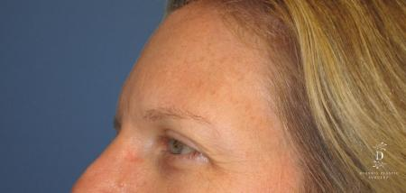 Eyelid Surgery: Patient 6 - Before and After Image 3