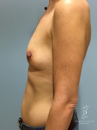 Breast Augmentation: Patient 11 - Before and After Image 5