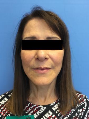 Facelift: Patient 6 - After Image 1