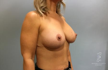 Breast Augmentation: Patient 12 - After Image 2