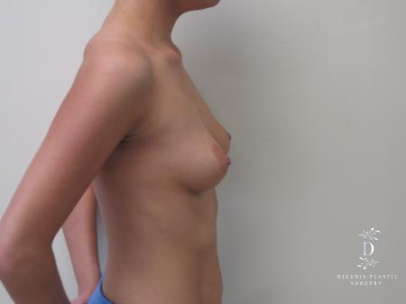 Breast Augmentation: Patient 5 - Before and After Image 5