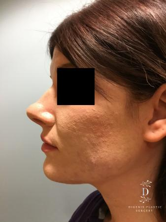 Rhinoplasty: Patient 2 - Before and After Image 5