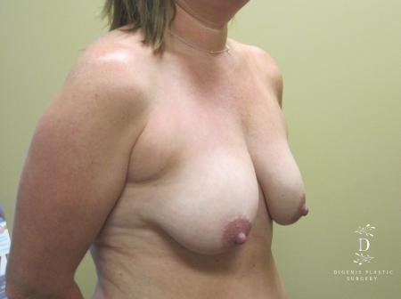 Breast Lift: Patient 5 - Before Image 2