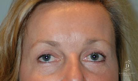 Eyelid Surgery: Patient 8 - After Image
