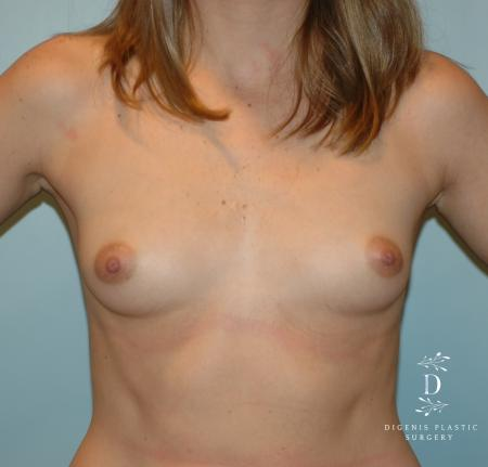 Breast Augmentation: Patient 7 - Before Image 1