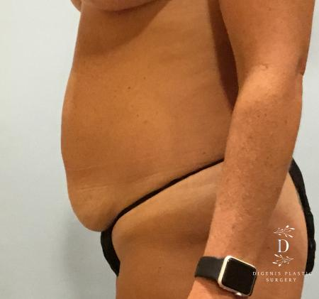 Abdominoplasty: Patient 3 - Before and After Image 5