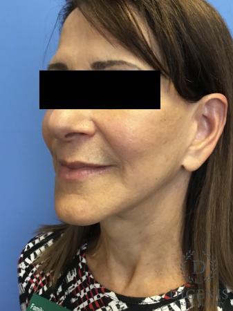 Facelift: Patient 6 - After Image 4
