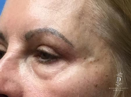 Eyelid Surgery: Patient 5 - After Image 4