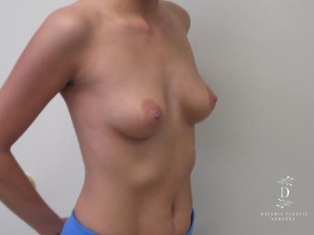 Breast Augmentation: Patient 5 - Before Image 4