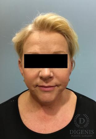 Facelift: Patient 12 - After Image 1