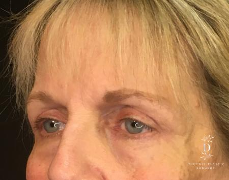 Eyelid Surgery: Patient 4 - After Image 4