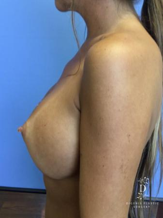 Breast Augmentation: Patient 9 - After Image 5