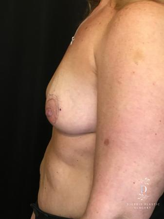 Breast Lift With Implants: Patient 8 - Before and After Image 5
