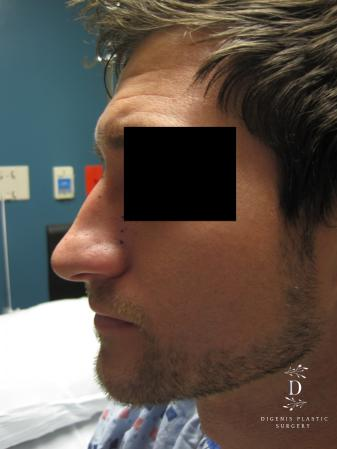 Rhinoplasty: Patient 10 - Before and After Image 4