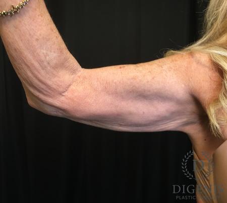 Brachioplasty: Patient 1 - Before Image 2