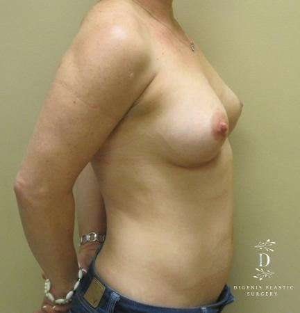 Breast Lift With Implants: Patient 1 - After Image 3