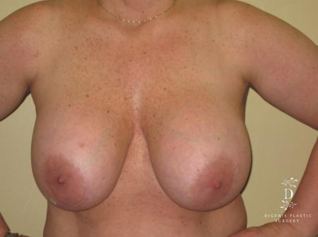 Breast Lift With Implants: Patient 7 - Before Image 1