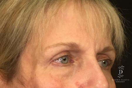 Eyelid Surgery: Patient 4 - After Image 2