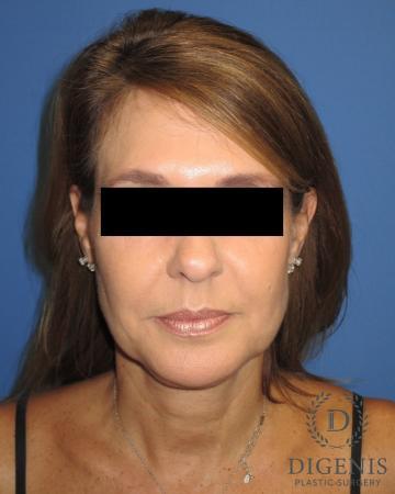 Facelift: Patient 10 - Before Image
