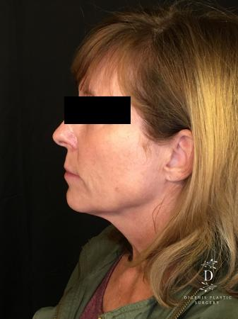 Digenis Refresh Lift: Patient 3 - Before and After Image 5