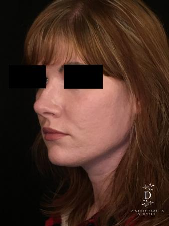 Rhinoplasty: Patient 2 - After Image 4