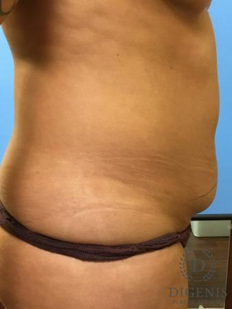 Abdominoplasty: Patient 1 - Before Image 3