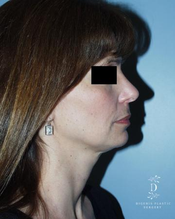 Rhinoplasty: Patient 5 - After Image 3