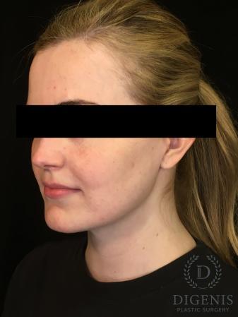 Digenis Refresh Lift: Patient 2 - After Image 2