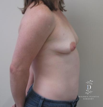 Breast Lift With Implants: Patient 1 - Before Image 3