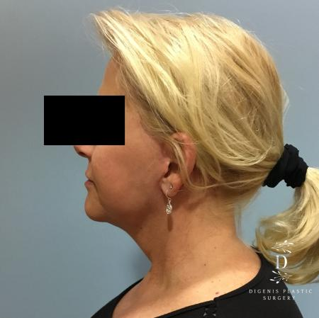Facelift: Patient 12 - After Image 5