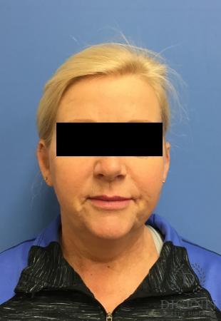 Facelift: Patient 12 - Before Image 1
