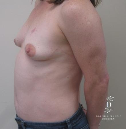 Breast Lift With Implants: Patient 1 - Before and After Image 5