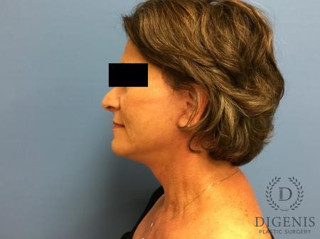 Facelift: Patient 15 - After Image 5
