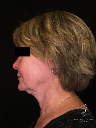 Digenis Refresh Lift: Patient 1 - Before and After Image 5