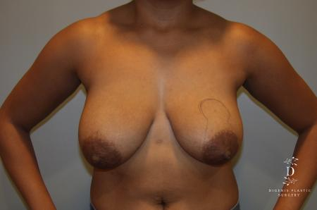 Breast Lift: Patient 2 - Before Image