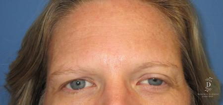 Eyelid Surgery: Patient 6 - Before Image