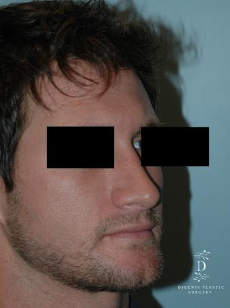 Rhinoplasty: Patient 10 - After Image 2