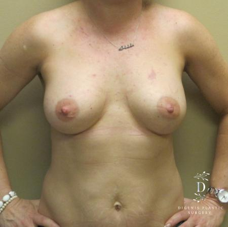 Breast Lift With Implants: Patient 1 - After Image 1