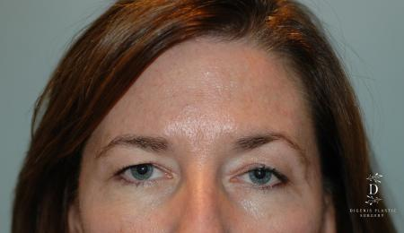 Eyelid Surgery: Patient 2 - Before Image