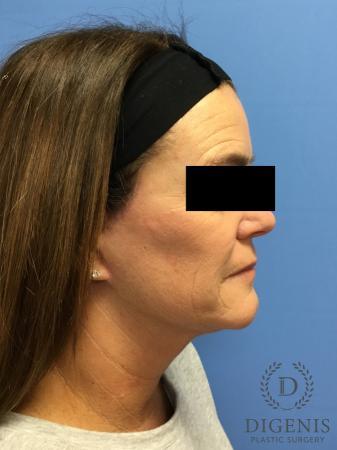 Facelift: Patient 11 - After Image 3