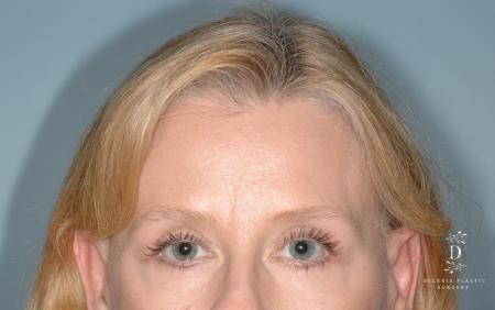Eyelid Surgery: Patient 7 - After Image