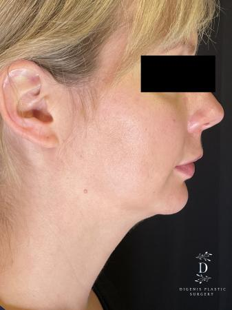 Injectables: Patient 3 - Before Image 1