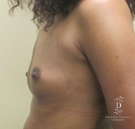 Breast Augmentation: Patient 14 - Before and After Image 3